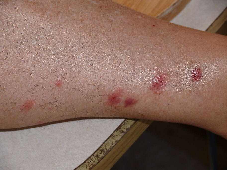 sandfly bites allergic reaction