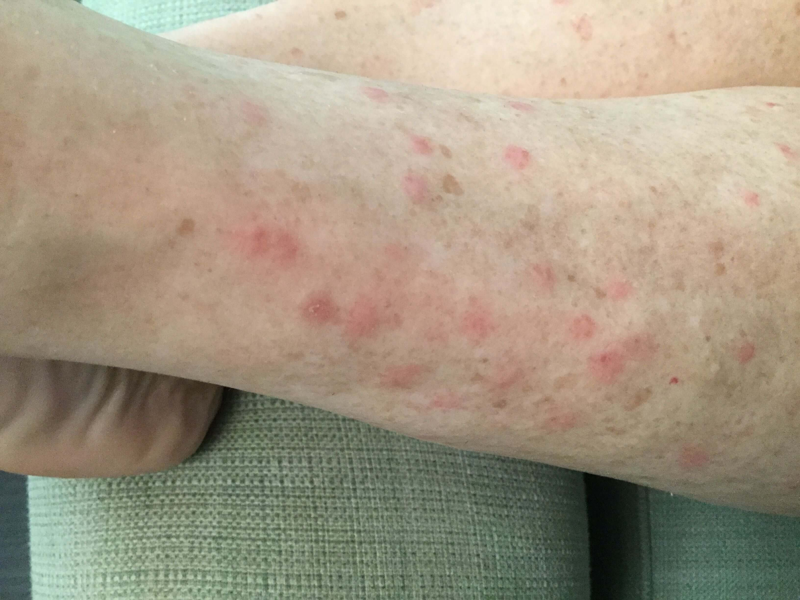 sand flies bites symptoms
